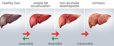 Evolução de problemas no fígado